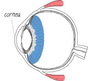 LASIK cornea reshaping laser eye surgery
